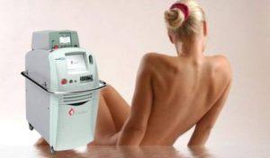 sistema láser depilación GentleMAX