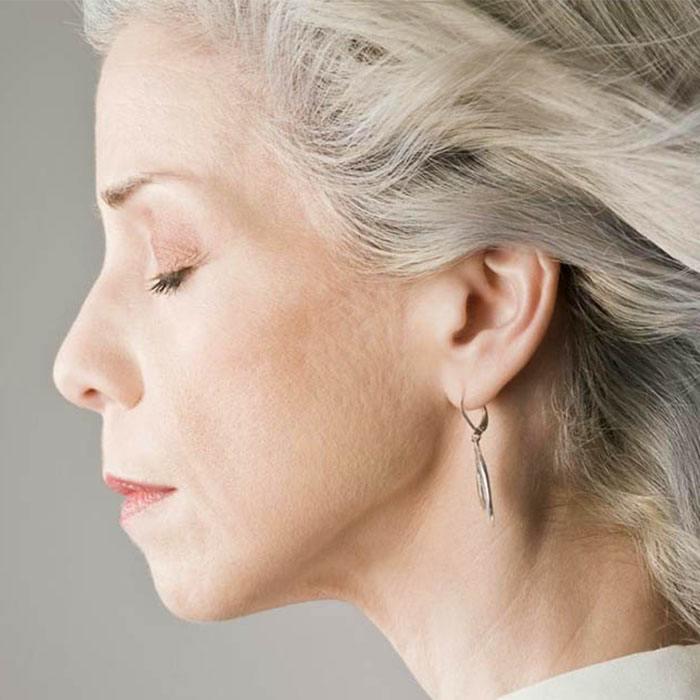 La depilación láser en personas con vellos claros